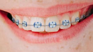 Lightforce-braces-Orthodontic-Specialists-of-St-Louis